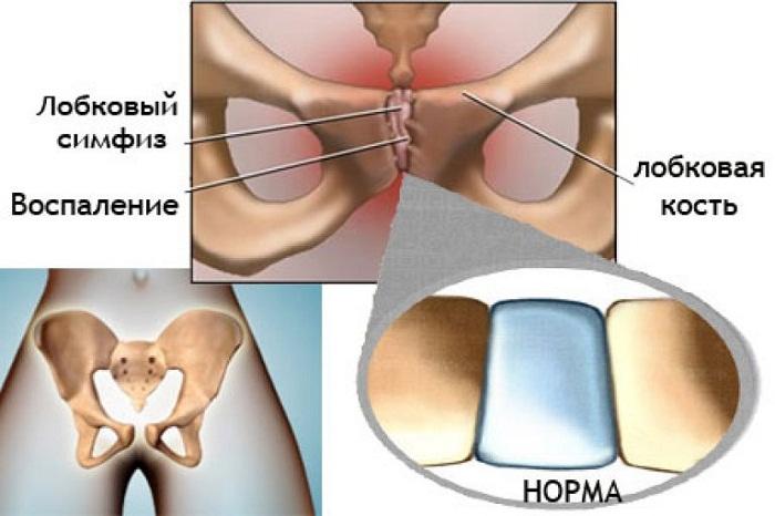 Болит самый низ живота над лобковой костью у женщин