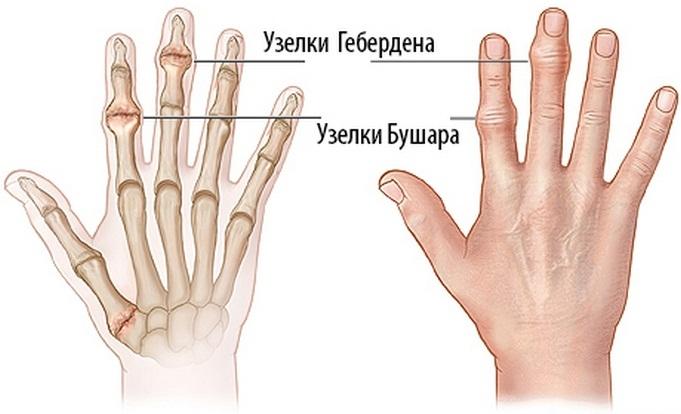 Az ujj mozgása egy kézben: hogyan jelennek meg, a kezelés elvei - Homorú-domború lencse July