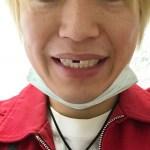 前歯の欠損した若年性特殊先輩の青年