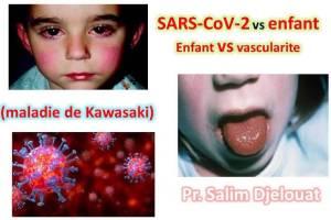 CoViD-19 – vs maladie de Kawasaki