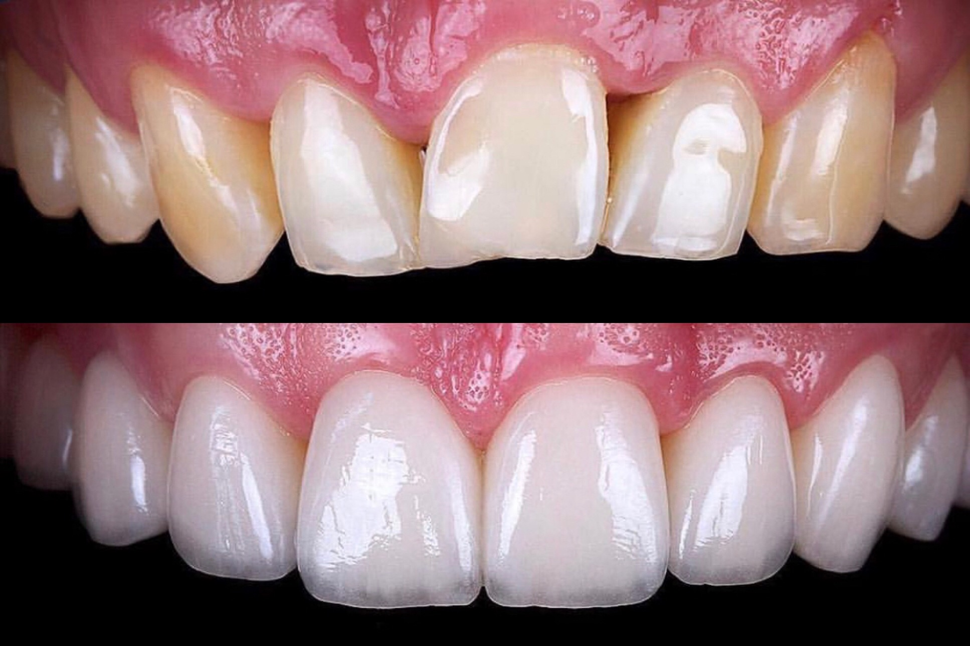 Free Consult for Veneers