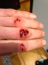 Should have worn full fingered gloves!
