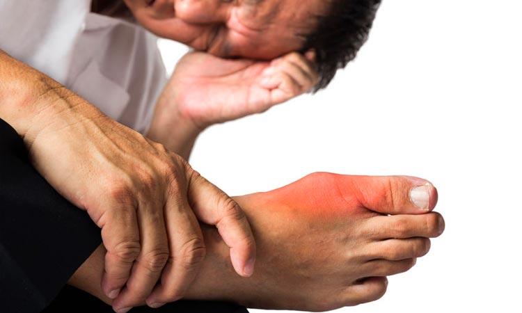 que consecuencias tiene el acido urico en el organismo manifestaciones del acido urico en la piel como eliminar el acido urico rapido