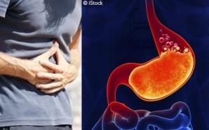 Acidez gástrica: consejos para evitarla