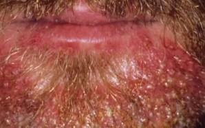 Barba abundante, una moda que podría concentrar microbios, parásitos y…
