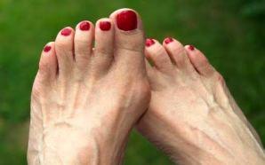 #Salud 'Los juanetes', complicaciones del pie que pueden limitar la…