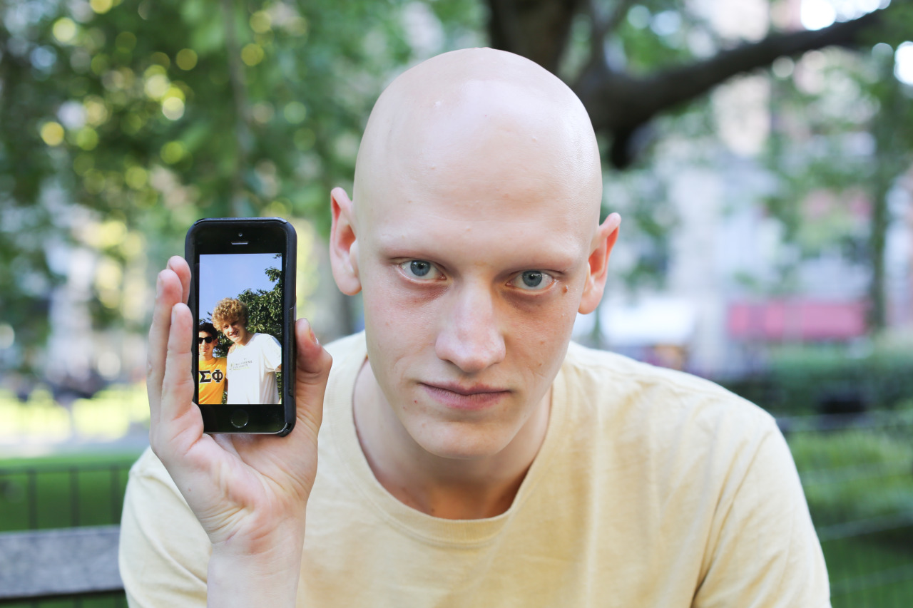 humans of new york, brandon stanton, photography, alopecia