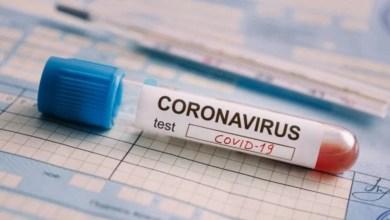 Photo of Se sumaron 19 nuevas muertes por coronavirus en todo el país