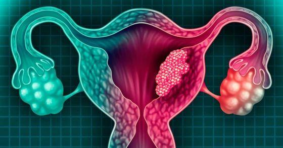 Salta incorporará la técnica de captura híbrida para detectar cáncer de cuello uterino