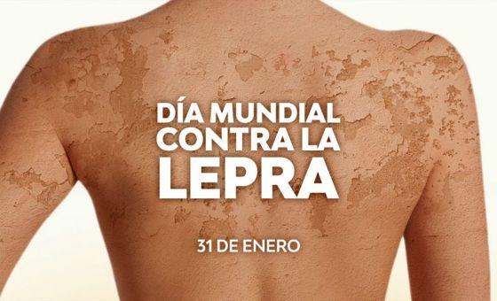 El 31 de enero se celebra el Día Mundial contra la Lepra
