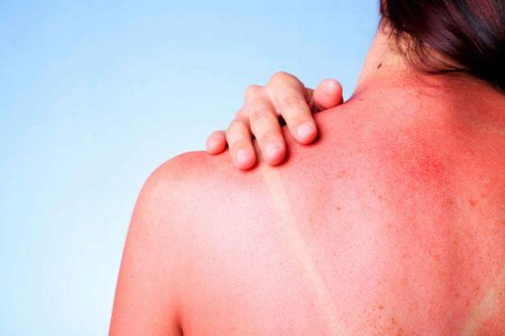 Reiteran recomendaciones para evitar daños por la exposición al sol