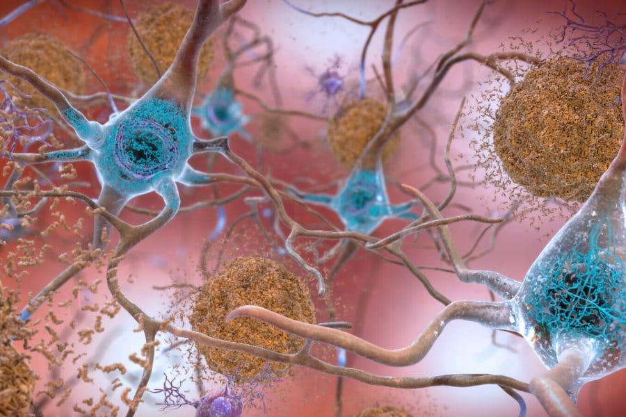 cerebro placas beta-amiloides y Tau en el cerebro proteina tau alzheimer