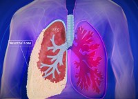 What Is Mesothelioma, Causes, Symptoms and Treatment