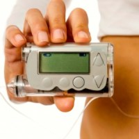a new innovation for type 2 diabetes