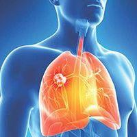 Despistaje de Cáncer Pulmonar