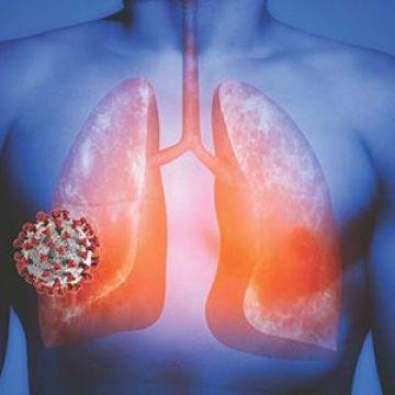 El nuevo Coronavirus o COVID-19 y como afecta el cuerpo