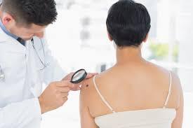 Dermatólogo observando lunar a una paciente de espaldas