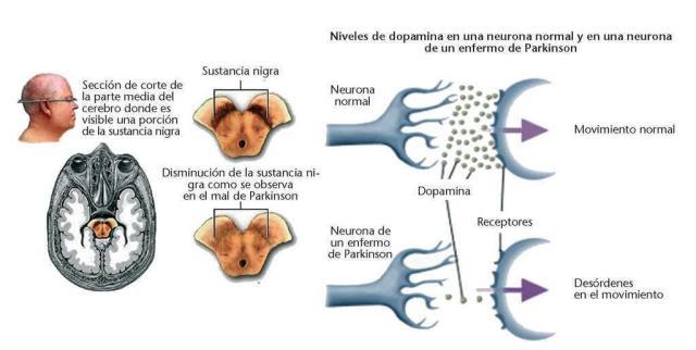 Parkinson: sinapsis neuronal