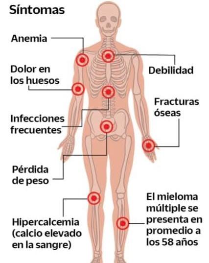 Cuerpo humano en los que se marcan los puntos más afectados por la aparición de un Mieloma