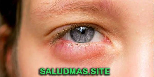 Irritación Ocular 5 Remedios Naturales
