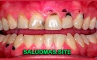 Limpieza Dental Como Eliminar La Caries