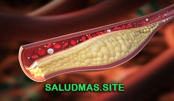 Colesterol Alto Cómo Controlarlo Naturalmente
