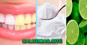 Blanquear Los Dientes Con Bicarbonato De Sodio