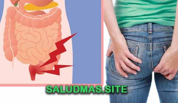 Remedios Naturales Para Desinflamar Las Hemorroides