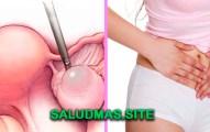 Remedios Caseros Para Eliminar Quistes En Los Ovarios
