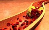 Sintomas Las arterias obstruidas mejoran