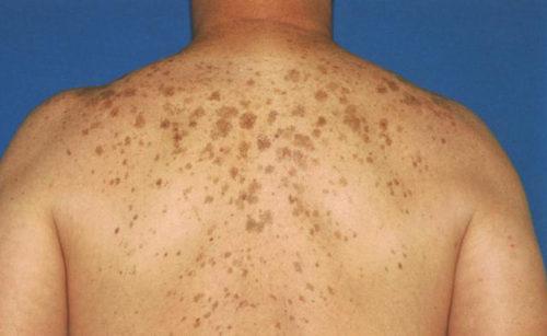 10 Maneras de deshacerse de manchas oscuras en la espalda rápido