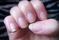 Clavos frágiles secos -