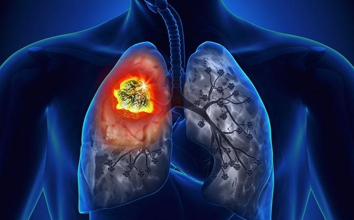 Aumenta la posibilidad de contraer cáncer de pulmón