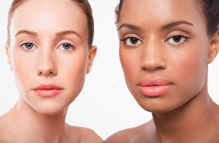 Hidroquinona para las cicatrices del acné y la hiperpigmentación