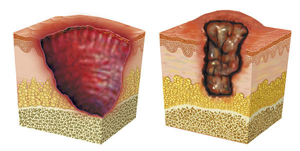 Causas de la úlcera buruli