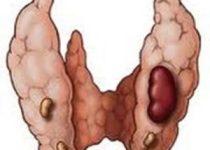 hiperparatiroidismo: causas, síntomas, tratamiento