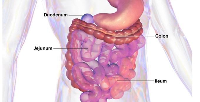 Síndrome del Intestino Irritable Causas