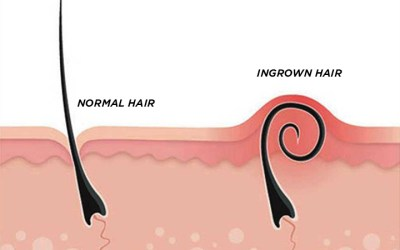 Ingrown Hairs – What, Why, and How (To Treat)