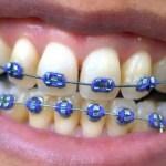 歯列矯正器具はファッション?ヨーロッパでも!?