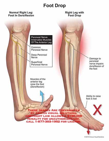 Common Peroneal Nerve Injury Samarpan Physiotherapy Clinic Ahmedabad