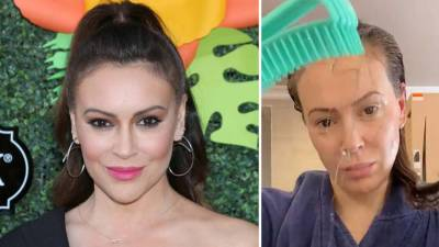 Alyssa Milano says she's losing her hair after battling Covid-19…