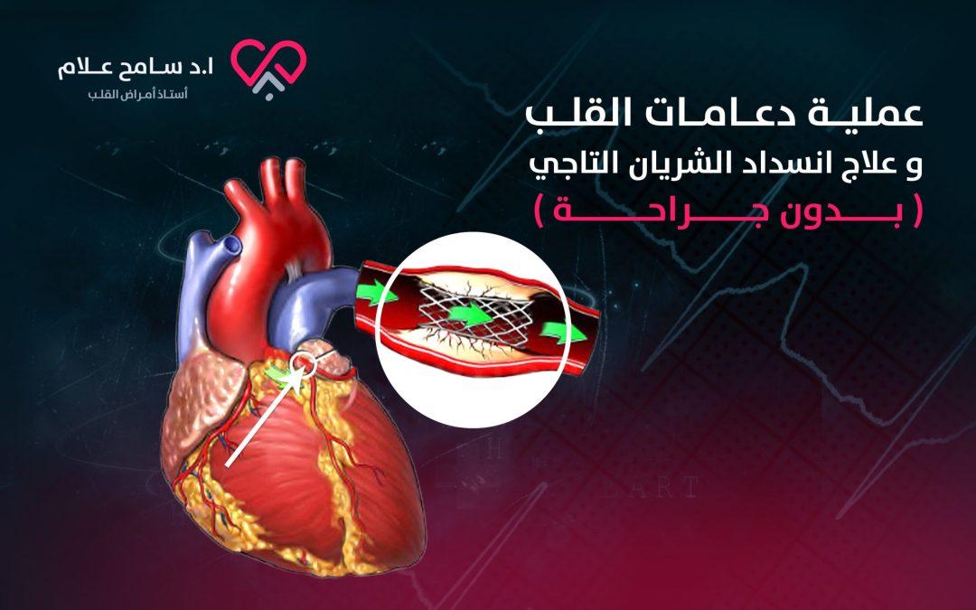 أفضل انواع دعامات القلب في علاج انسداد الشريان التاجي بدون جراحة