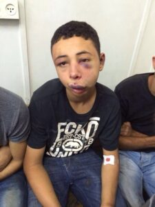 Tarek Abu Khdeir, following beating by occupation forces.