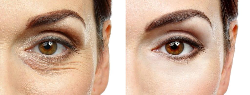 Eye Botox