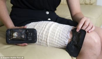 Defective Samsung mobile explodes and burns a teenager