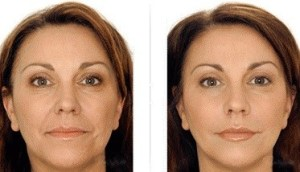 Best Microdermabrasion In San Antonio
