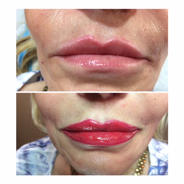 Full LIP Permanent Makeup Before and After