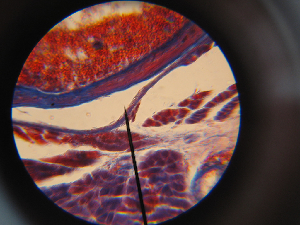 A microscope slide of bone marrow.
