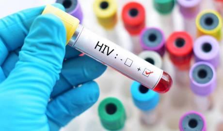 Diagnosticul precoce al HIV/SIDA: speranță de viață mai mare și rată de transmitere mai mică