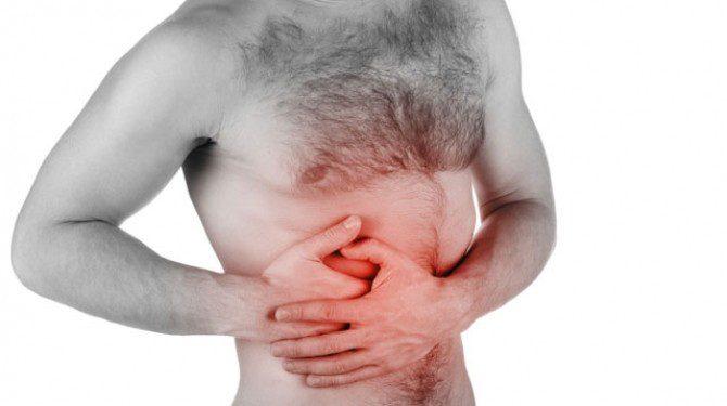 cancerul colorectal -cauza-tratament